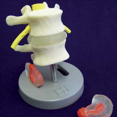 Dissectible Lumbar Vertebrae model